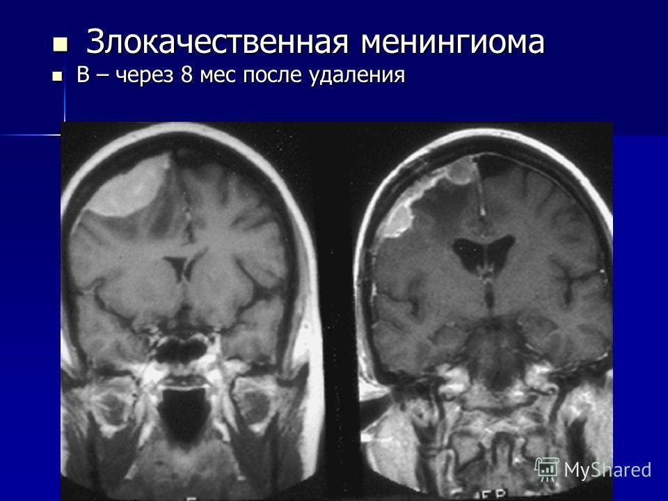 Злокачественная менингиома Злокачественная менингиома В – через 8 мес после удаления В – через 8 мес после удаления