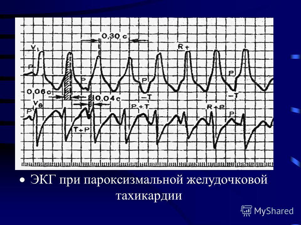 ЭКГ при пароксизмальной желудочковой тахикардии