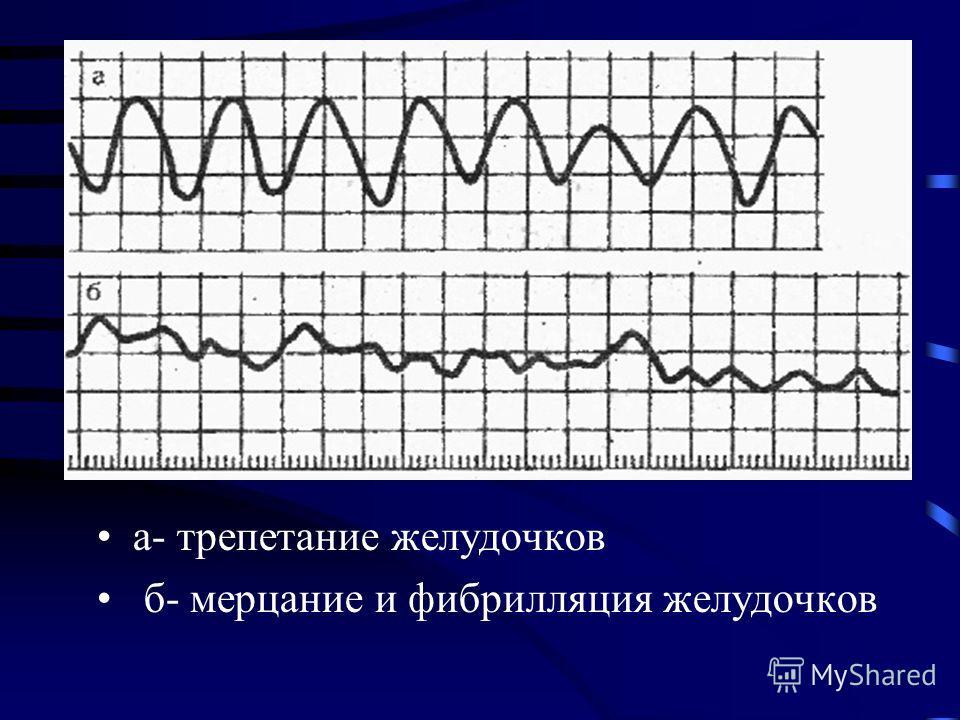 а- трепетание желудочков б- мерцание и фибрилляция желудочков
