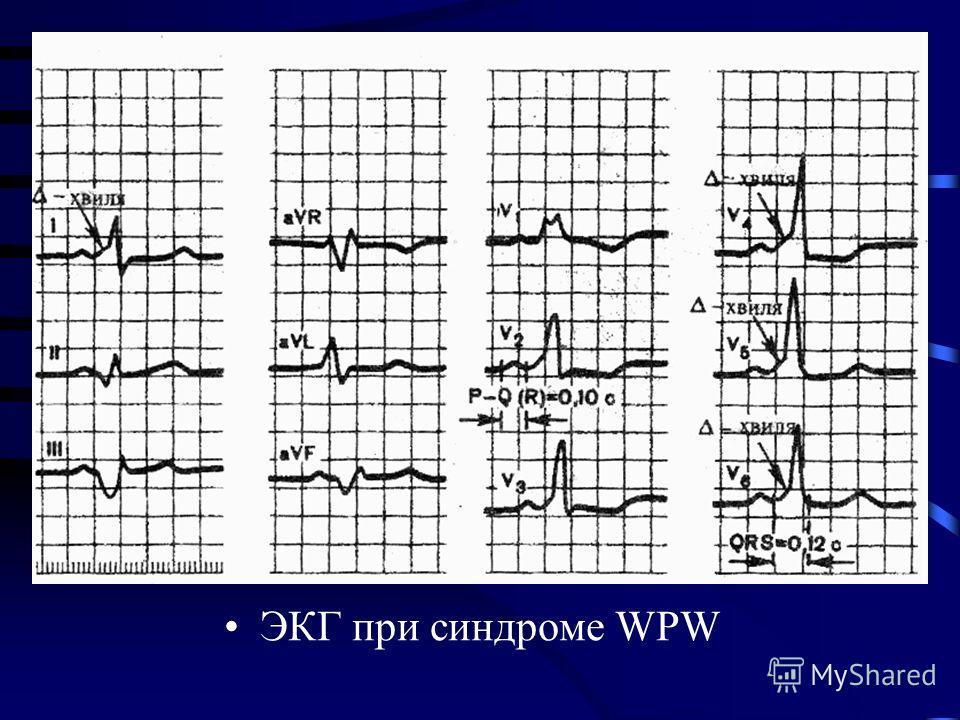 ЭКГ при синдроме WPW