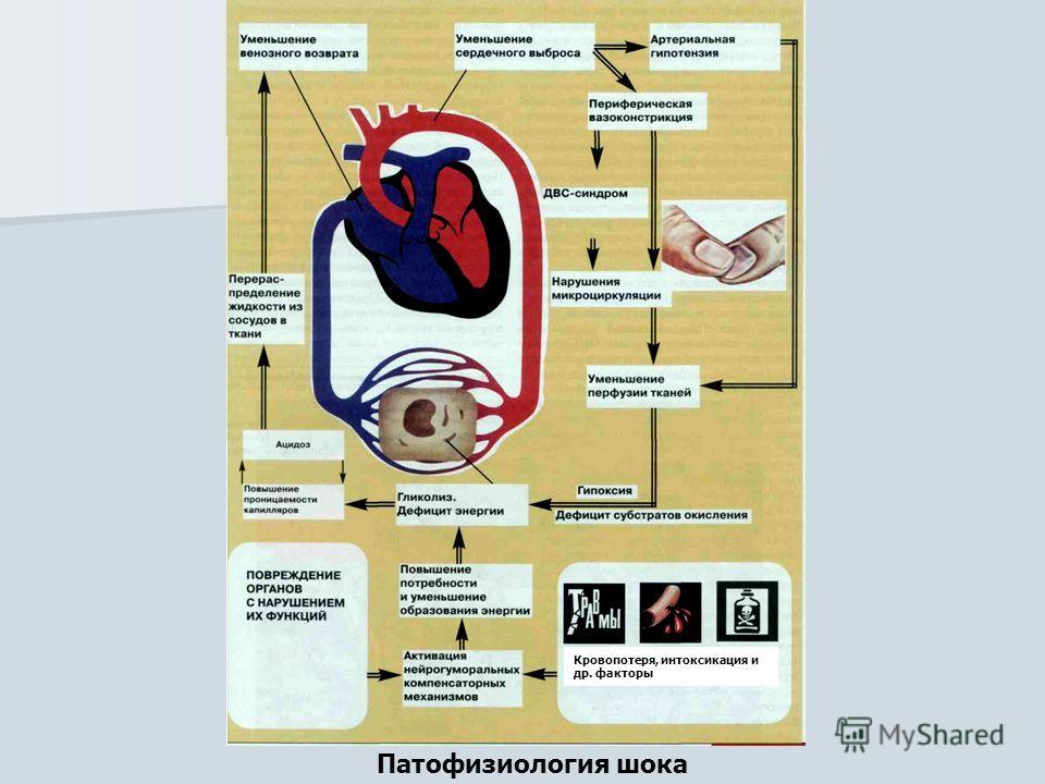 Патофизиология шока Кровопотеря, интоксикация и др. факторы