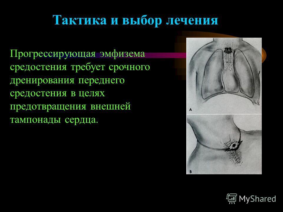 Тактика и выбор лечения Прогрессирующая эмфизема средостения требует срочного дренирования переднего средостения в целях предотвращения внешней тампонады сердца.