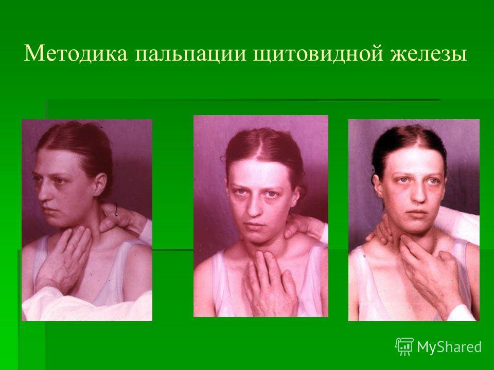 Методика пальпации щитовидной железы
