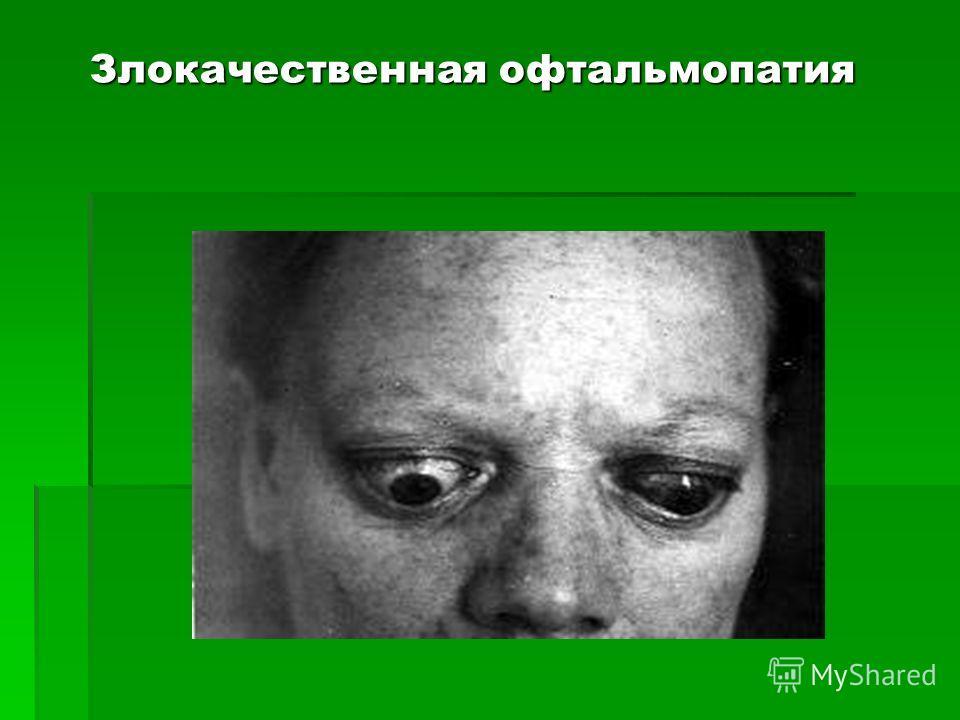 Злокачественная офтальмопатия