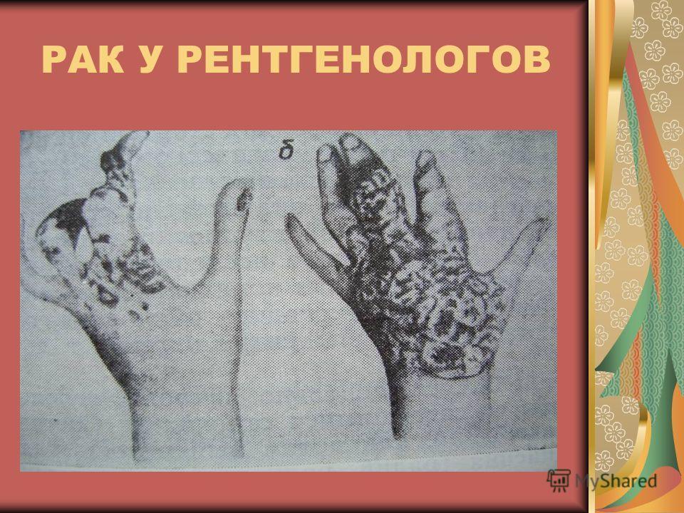 РАК У РЕНТГЕНОЛОГОВ