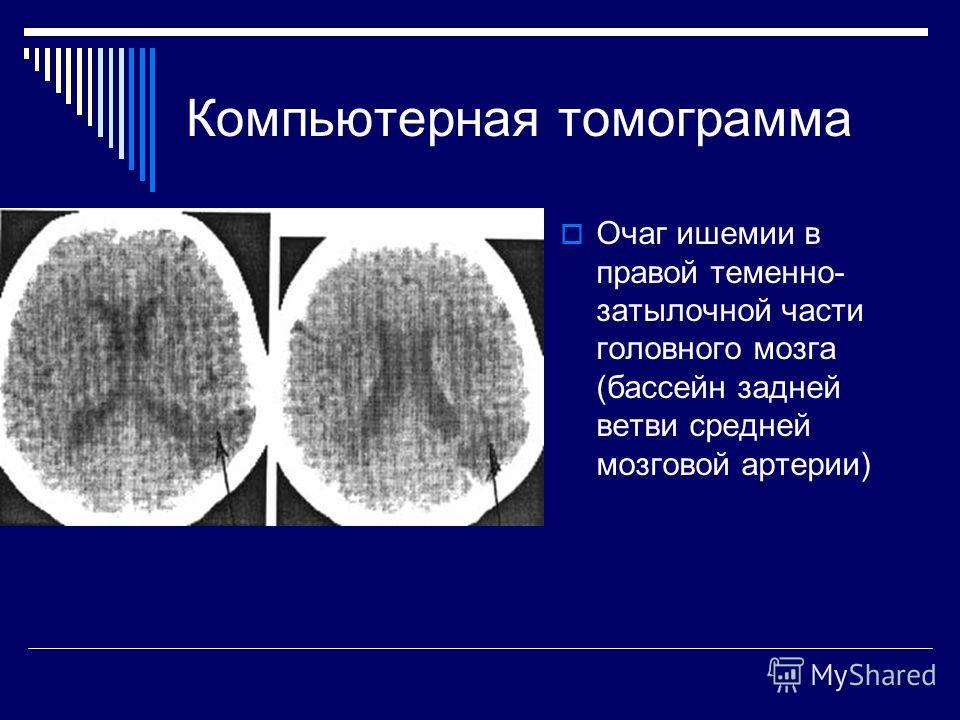 Компьютерная томограмма Очаг ишемии в правой теменно- затылочной части головного мозга (бассейн задней ветви средней мозговой артерии)