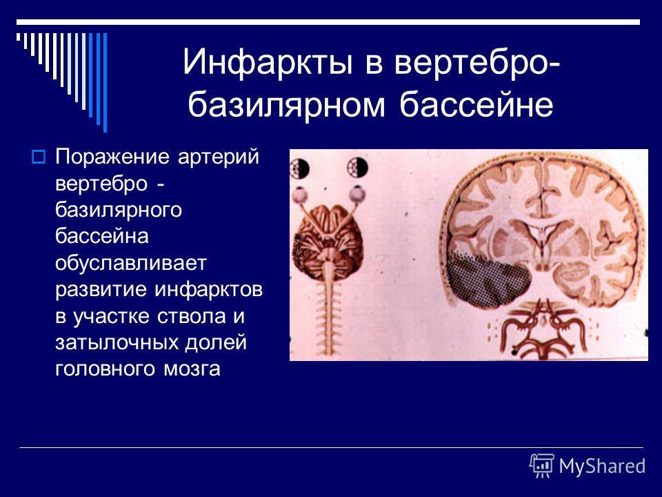 Инфаркты в вертебро- базилярном бассейне Поражение артерий вертебро - базилярного бассейна обуславливает развитие инфарктов в участке ствола и затылочных долей головного мозга