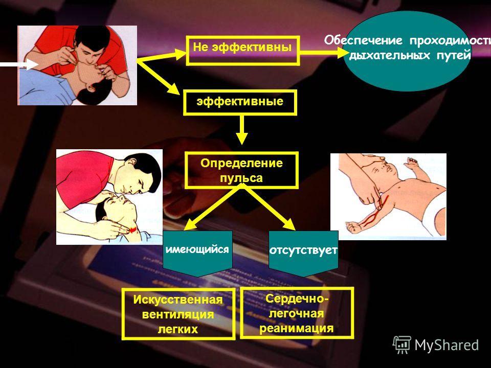 Не эффективны эффективные Определение пульса Обеспечение проходимости дыхательных путей имеющийся отсутствует Искусственная вентиляция легких Сердечно- легочная реанимация