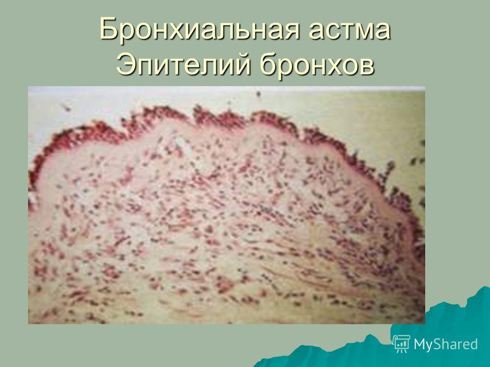 Бронхиальная астма Эпителий бронхов
