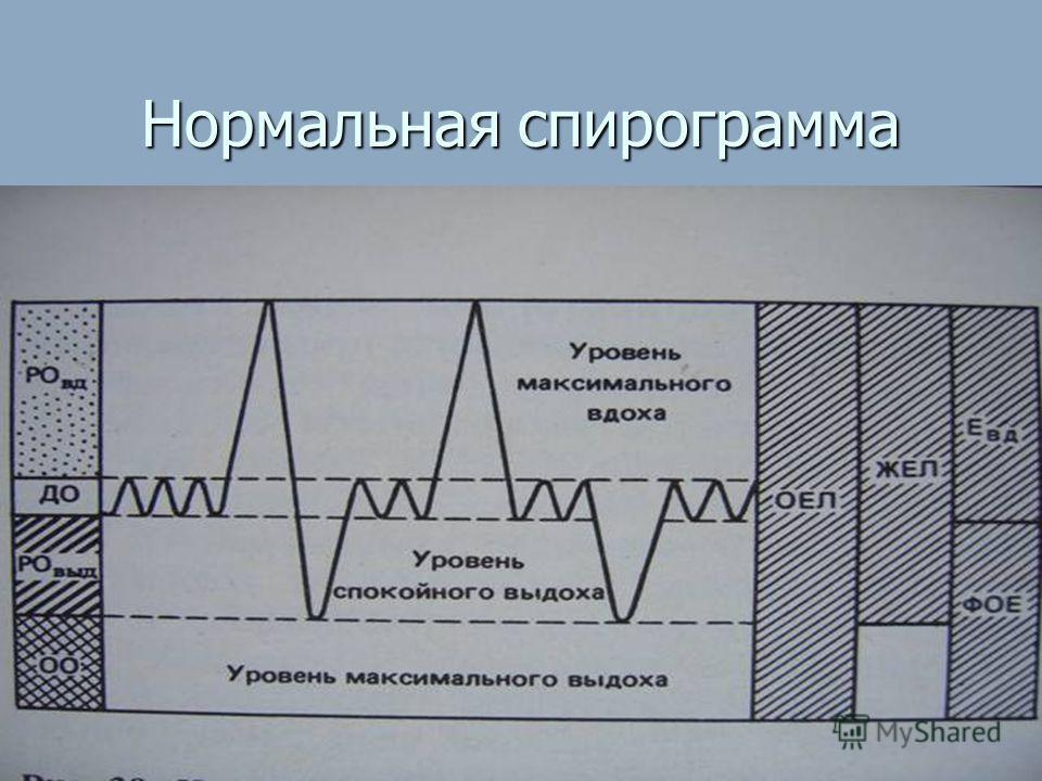 Нормальная спирограмма