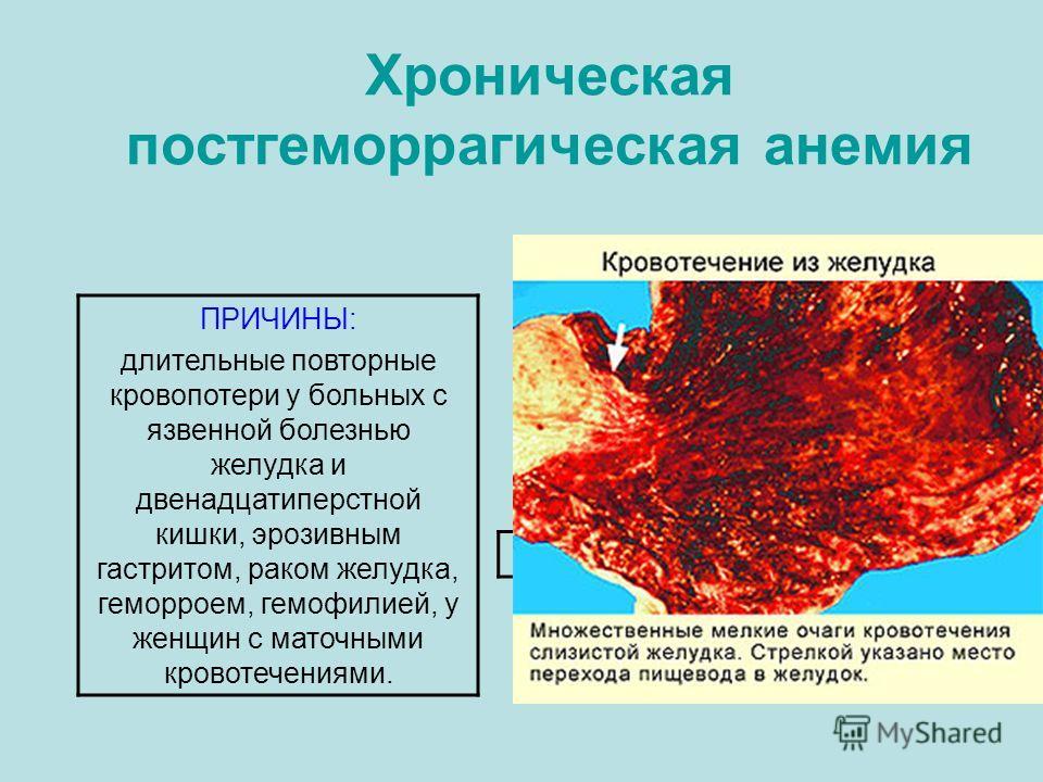 Хроническая постгеморрагическая анемия ПРИЧИНЫ: длительные повторные кровопотери у больных с язвенной болезнью желудка и двенадцатиперстной кишки, эрозивным гастритом, раком желудка, геморроем, гемофилией, у женщин с маточными кровотечениями.
