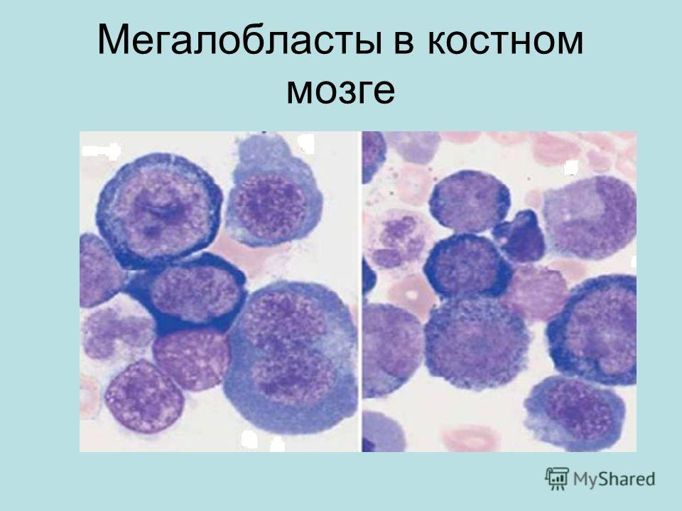 Мегалобласты в костном мозге