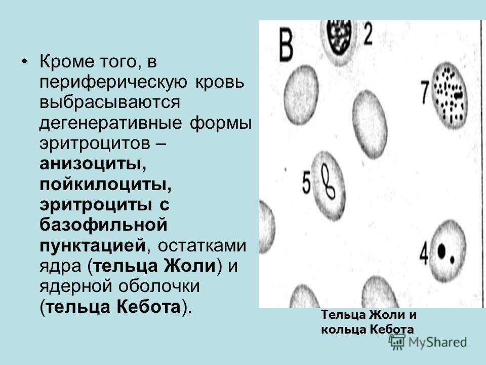 Кроме того, в периферическую кровь выбрасываются дегенеративные формы эритроцитов – анизоциты, пойкилоциты, эритроциты с базофильной пунктацией, остатками ядра (тельца Жоли) и ядерной оболочки (тельца Кебота). Тельца Жоли и кольца Кебота