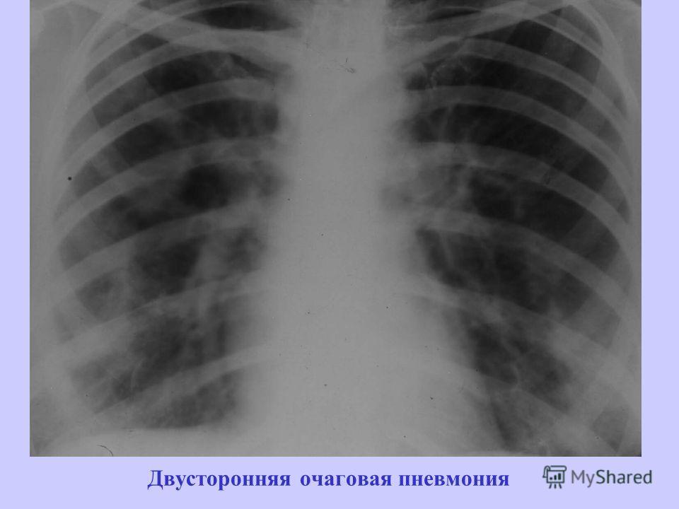 Двусторонняя очаговая пневмония