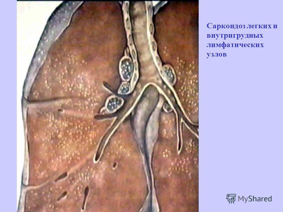 Саркоидоз легких и внутригрудных лимфатических узлов