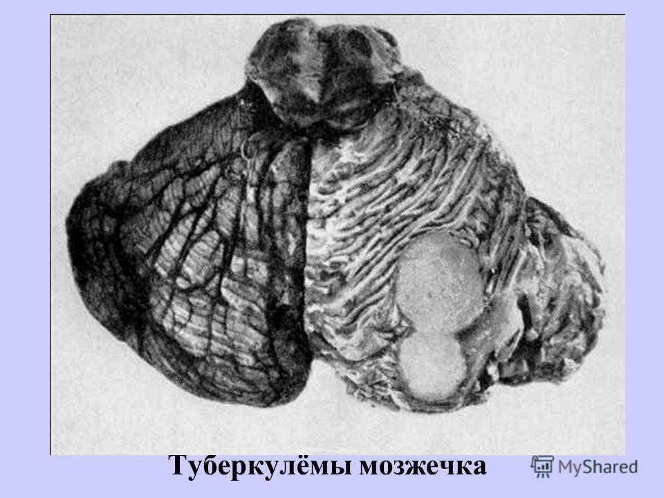 Туберкулёмы мозжечка