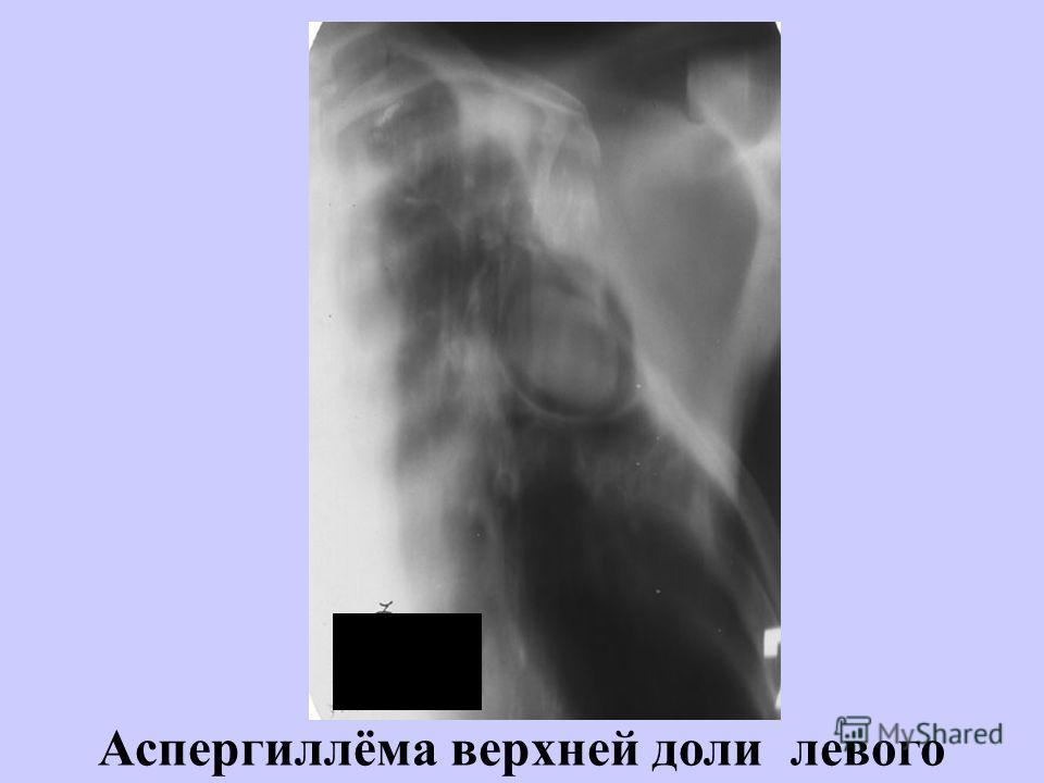 Аспергиллёма верхней доли левого лёгкого