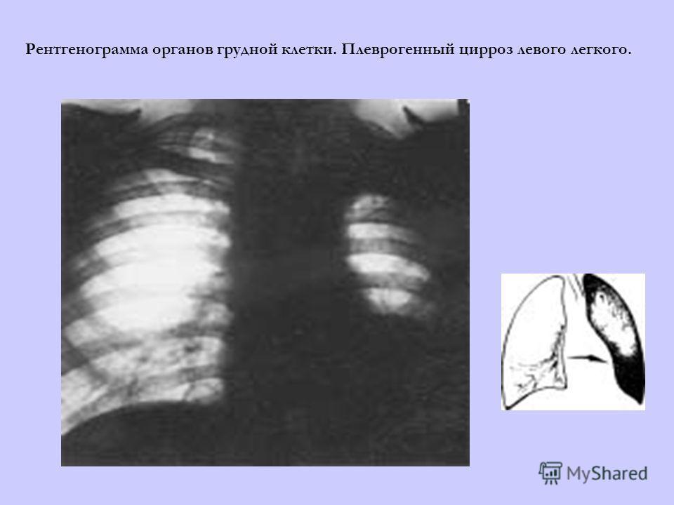 Рентгенограмма органов грудной клетки. Плеврогенный цирроз левого легкого.