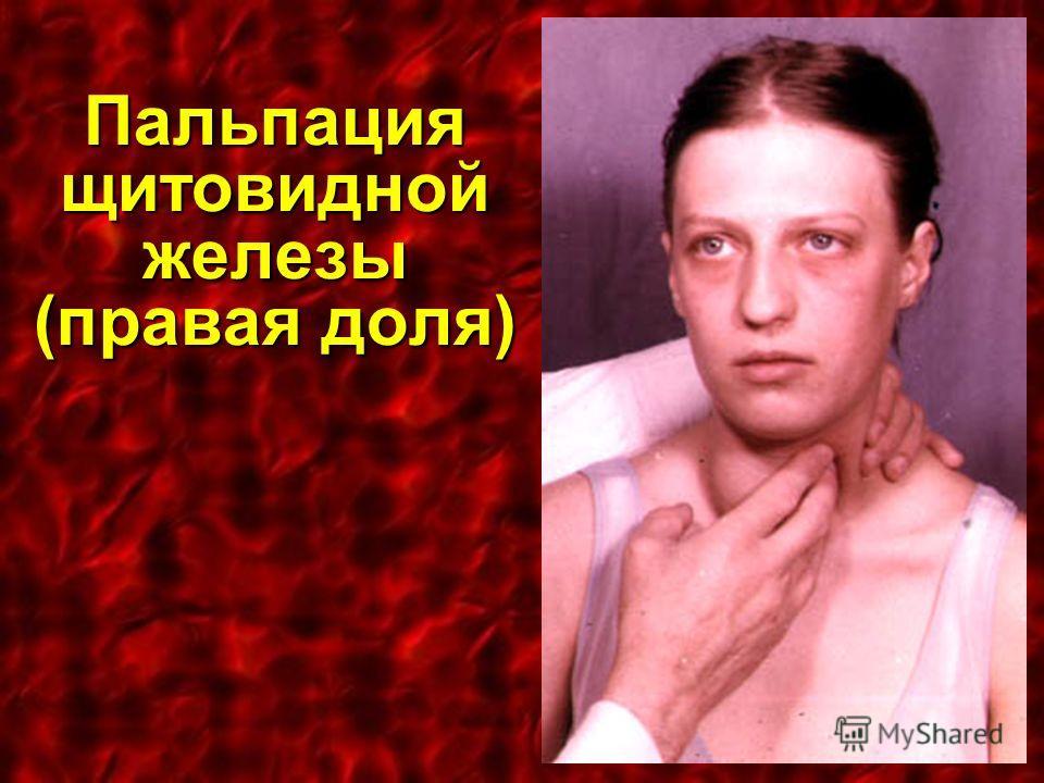 Пальпация щитовидной железы (правая доля)