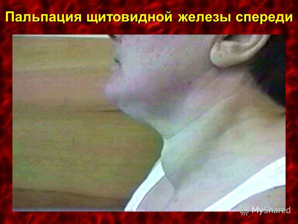 Пальпация щитовидной железы спереди