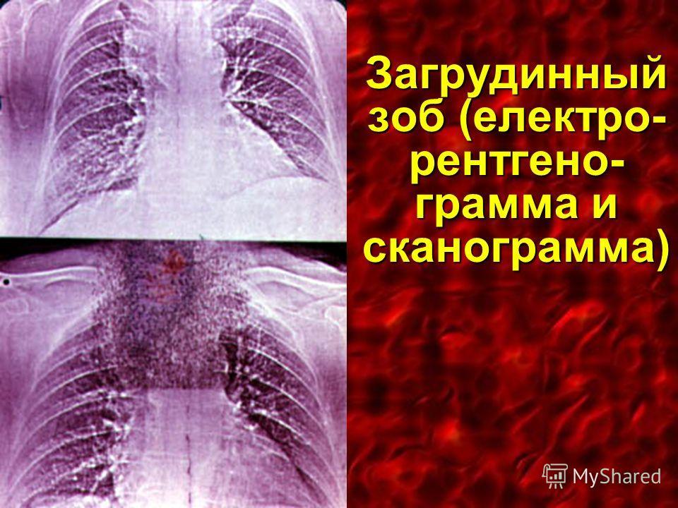 Загрудинный зоб (електро- рентгено- грамма и сканограмма)