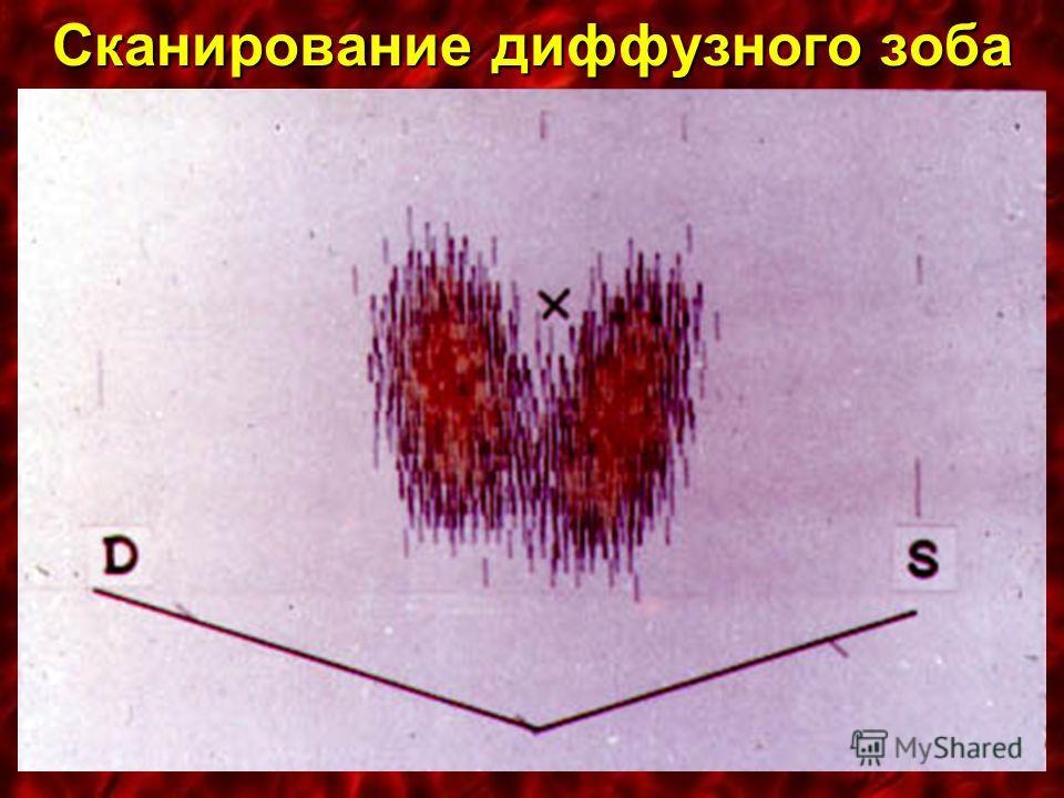 Сканирование диффузного зоба