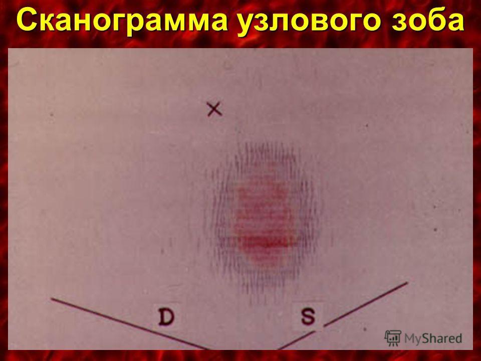 Сканограмма узлового зоба