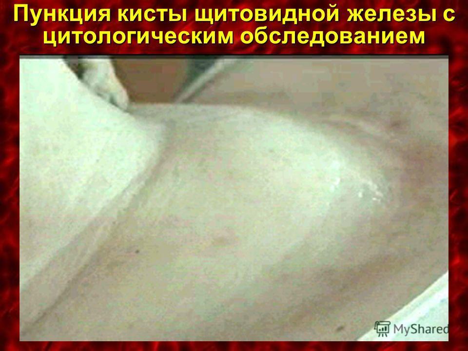 Пункция кисты щитовидной железы с цитологическим обследованием