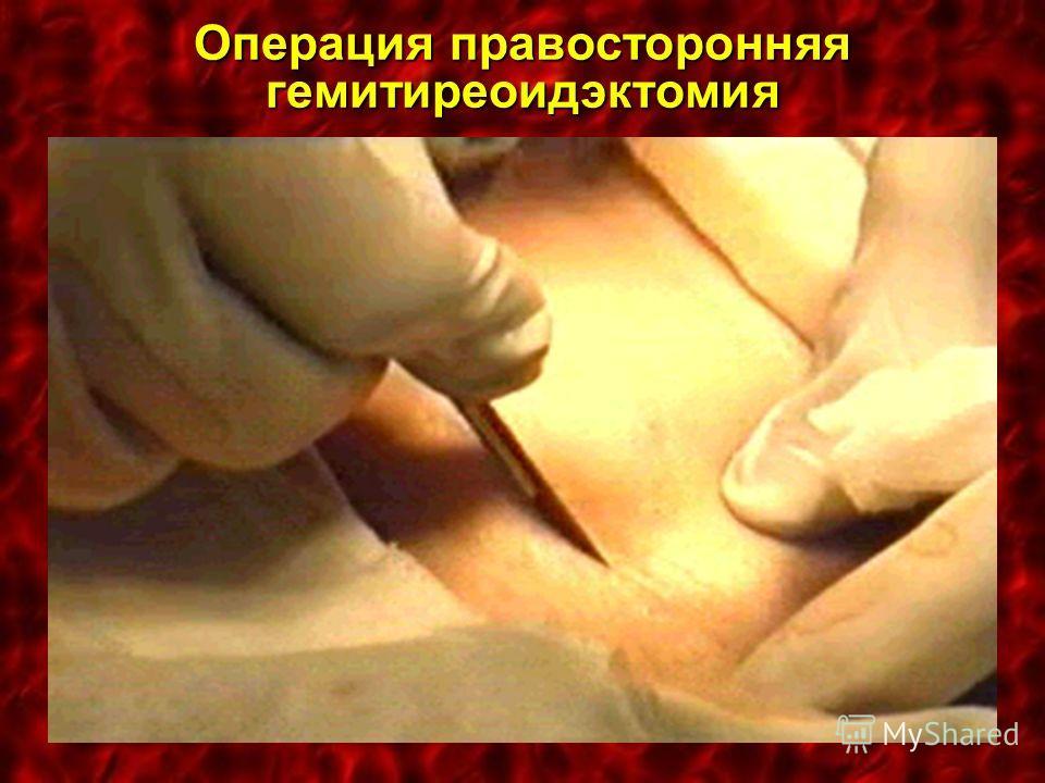Операция правосторонняя гемитиреоидэктомия
