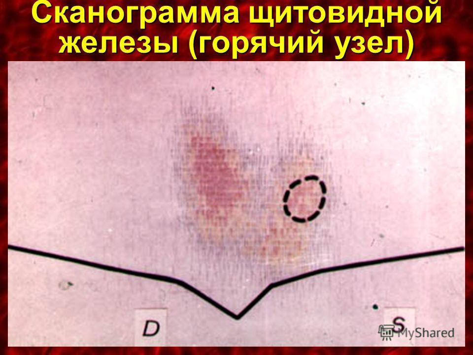 Сканограмма щитовидной железы (горячий узел)