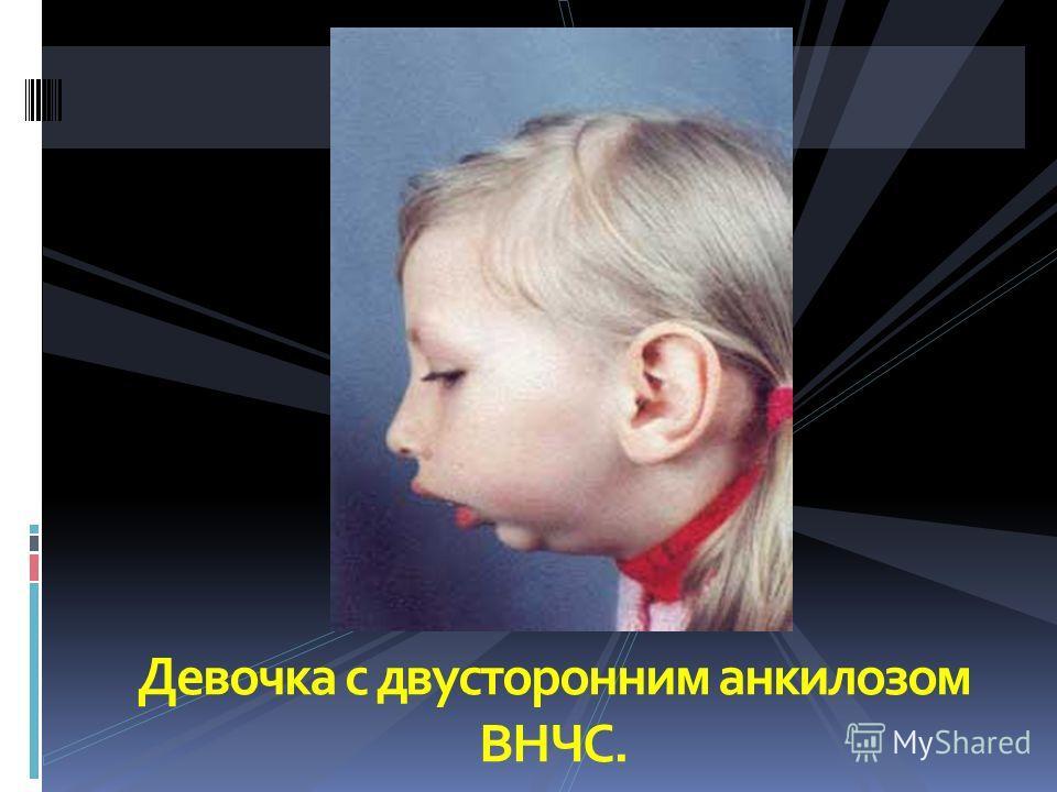 Девочка с двусторонним анкилозом ВНЧС.