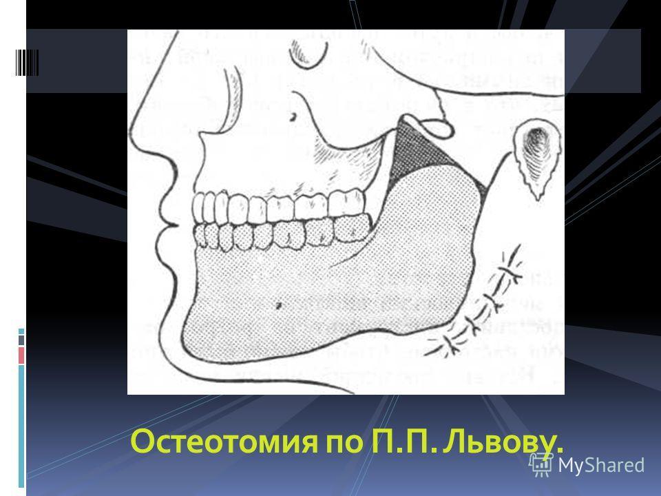 Остеотомия по П.П. Львову.