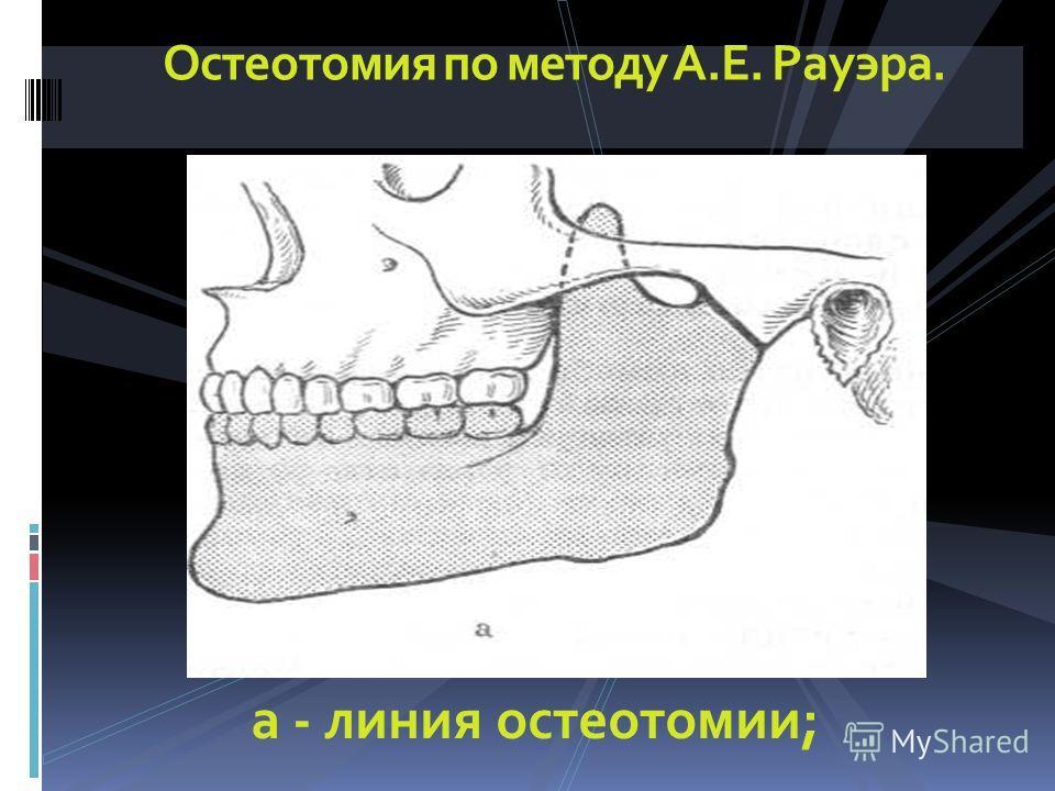 Остеотомия по методу А.Е. Рауэра. а - линия остеотомии;