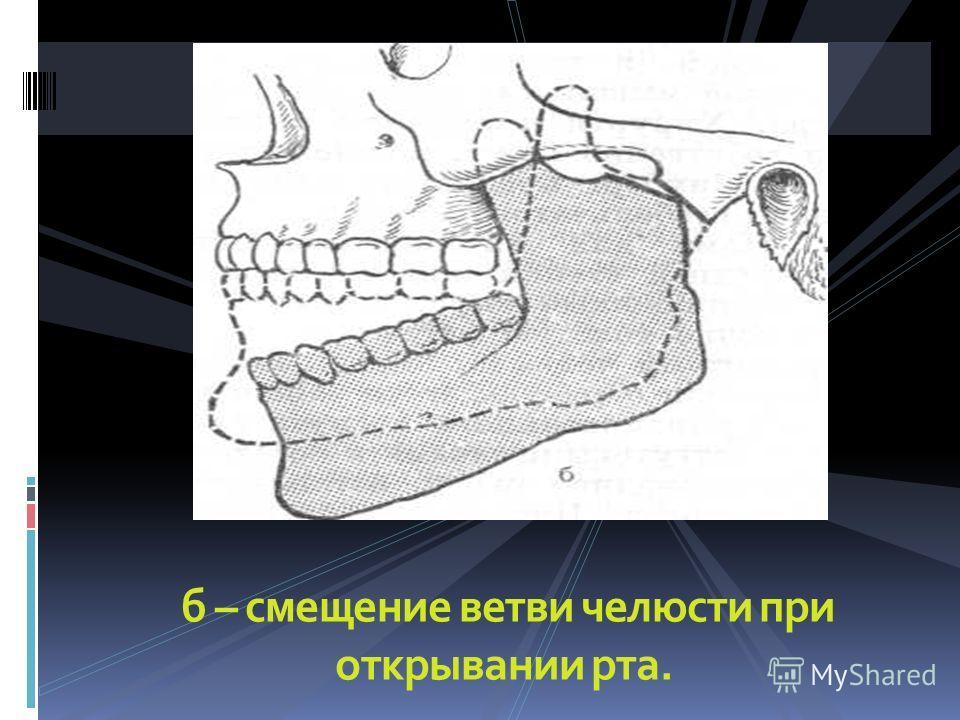 б – смещение ветви челюсти при открывании рта.