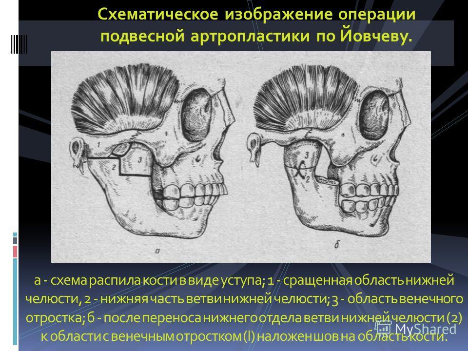 а - схема распила кости в виде уступа; 1 - сращенная область нижней челюсти, 2 - нижняя часть ветви нижней челюсти; 3 - область венечного отростка; б - после переноса нижнего отдела ветви нижней челюсти (2) к области с венечным отростком (І) наложен