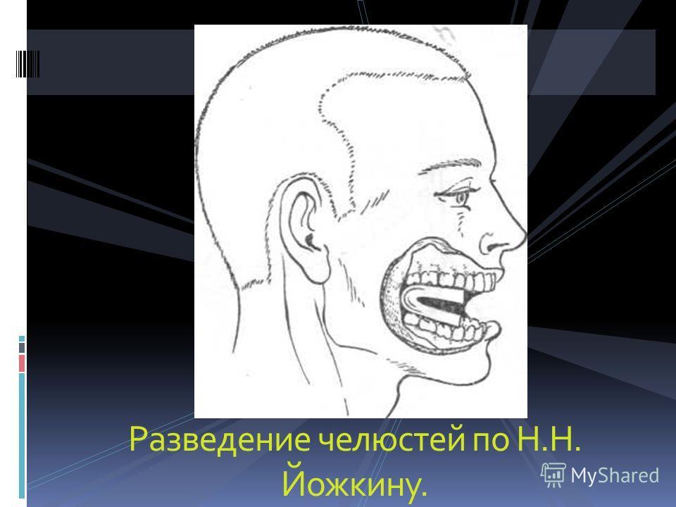 Разведение челюстей по Н.Н. Йожкину.