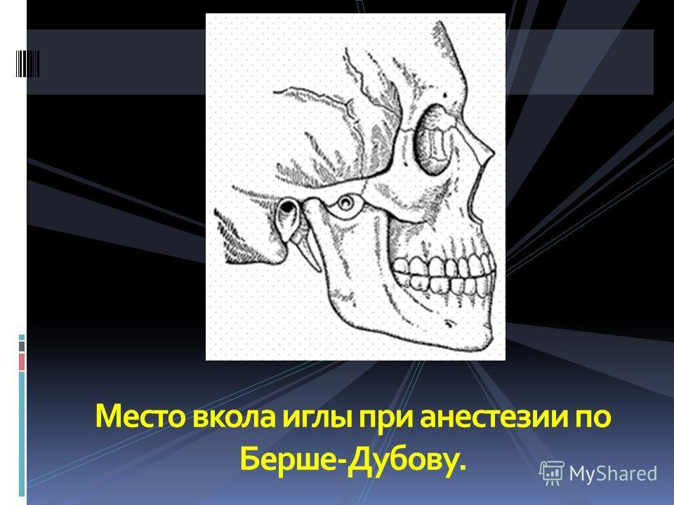 Место вкола иглы при анестезии по Берше-Дубову.
