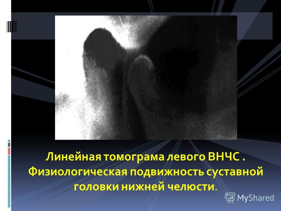 Линейная томограма левого ВНЧС. Физиологическая подвижность суставной головки нижней челюсти.
