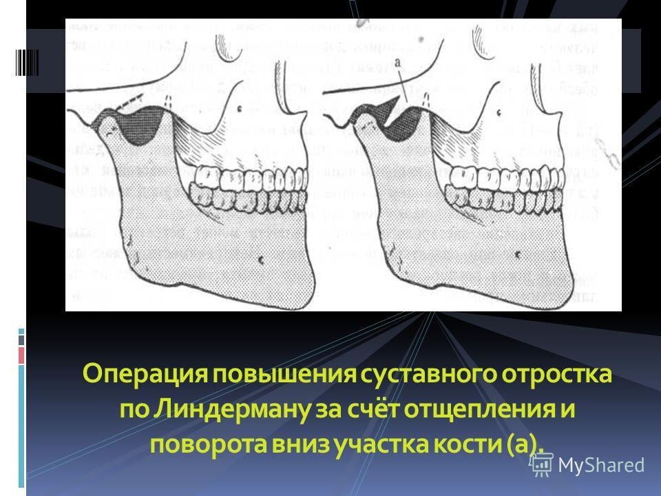 Операция повышения суставного отростка по Линдерману за счёт отщепления и поворота вниз участка кости (а).