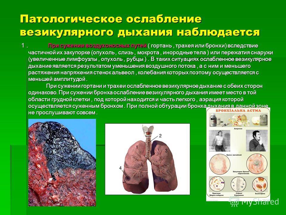 Патологическое ослабление везикулярного дыхания наблюдается 1. При сужении воздухоносных путей ( гортань, трахея или бронхи) вследствие частичной их закупорке (опухоль, слизь, мокрота, инородные тела ) или пережатия снаружи (увеличенные лимфоузлы, оп
