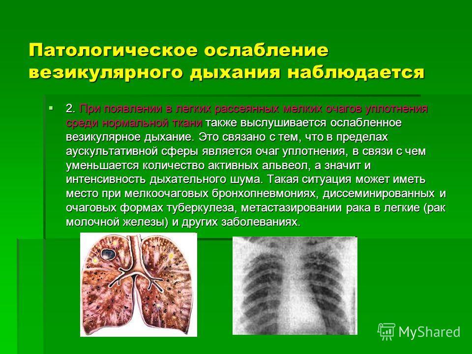 Патологическое ослабление везикулярного дыхания наблюдается 2. При появлении в легких рассеянных мелких очагов уплотнения среди нормальной ткани также выслушивается ослабленное везикулярное дыхание. Это связано с тем, что в пределах аускультативной с