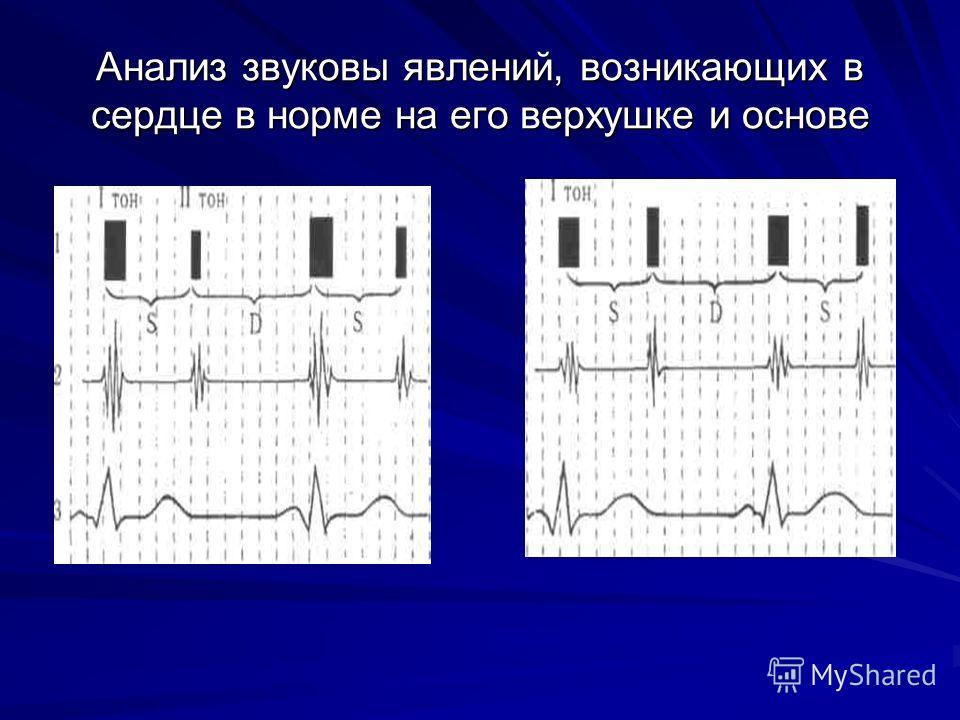 Анализ звуковы явлений, возникающих в сердце в норме на его верхушке и основе