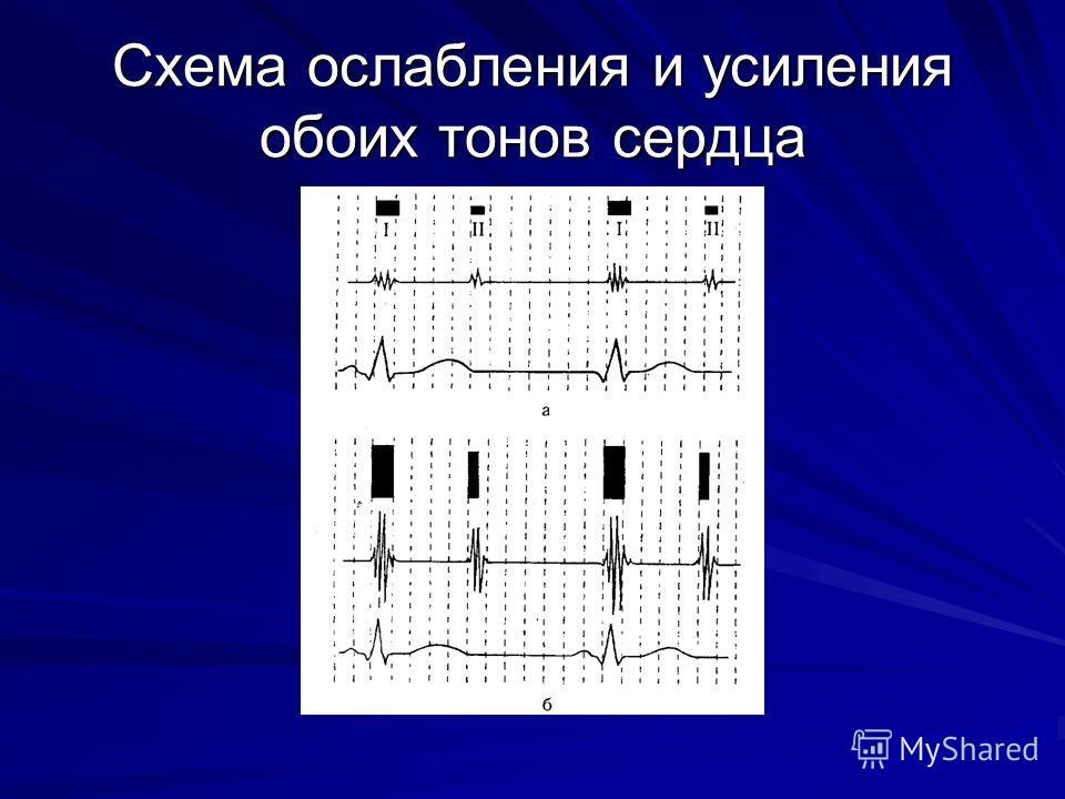 Схема ослабления и усиления обоих тонов сердца