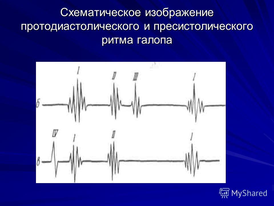 Схематическое изображение протодиастолического и пресистолического ритма галопа