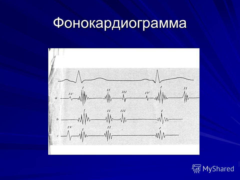 Фонокардиограмма