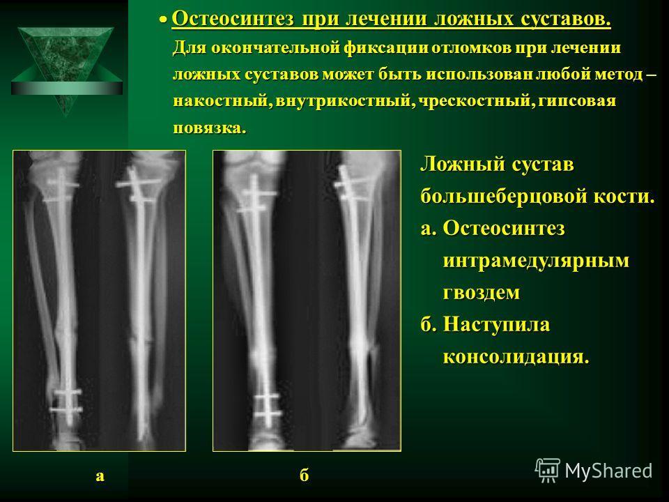 Остеосинтез при лечении ложных суставов. Остеосинтез при лечении ложных суставов. Для окончательной фиксации отломков при лечении Для окончательной фиксации отломков при лечении ложных суставов может быть использован любой метод – ложных суставов мож