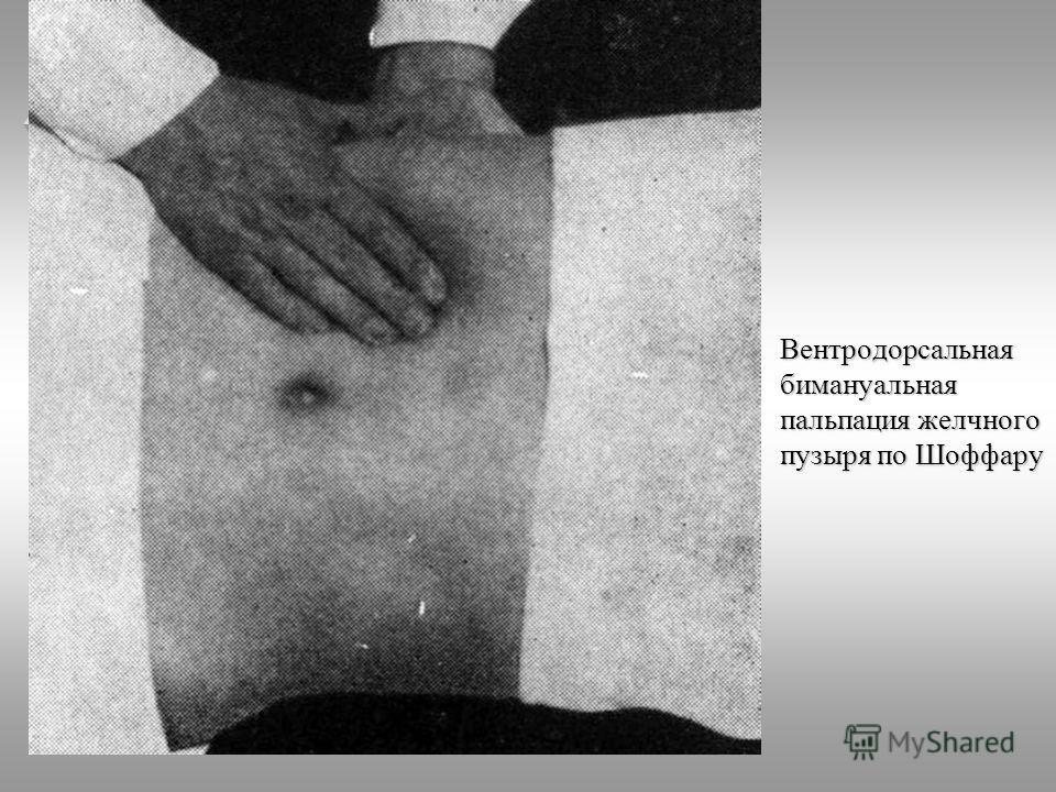 ТДМА Вентродорсальная бимануальная пальпация желчного пузыря по Шоффару