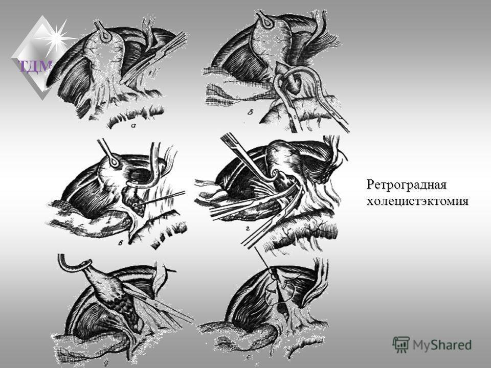ТДМА Ретроградная холецистэктомия