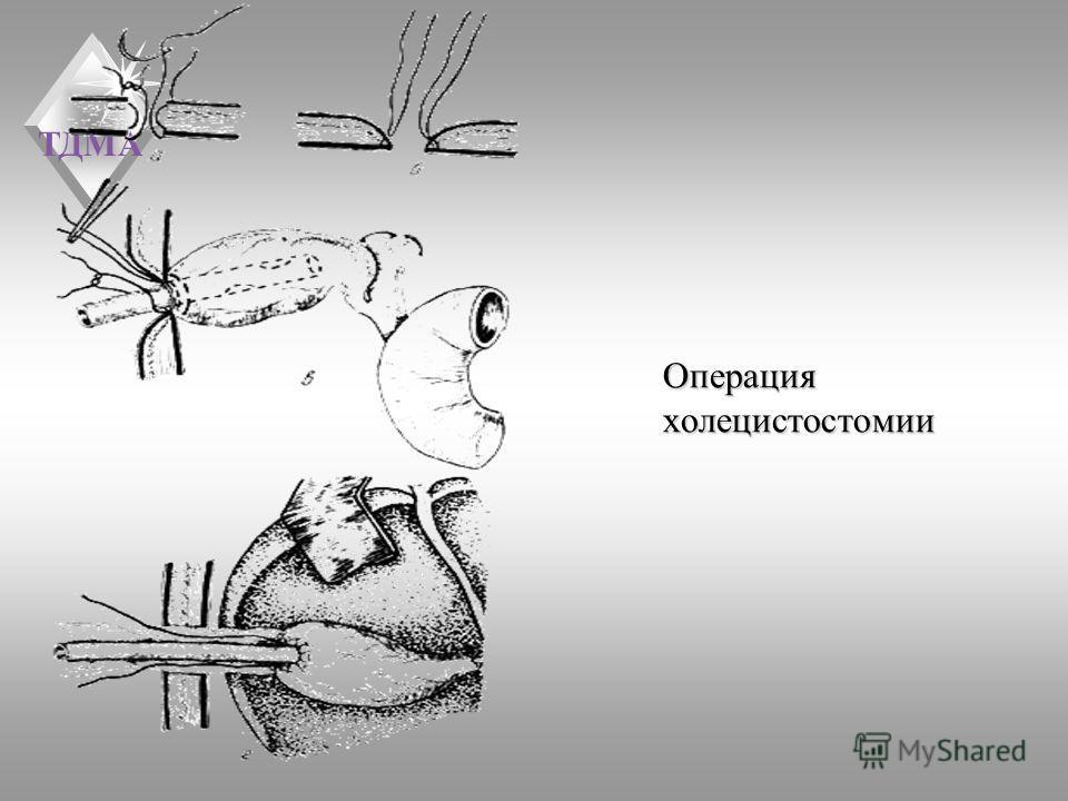 ТДМА Операция холецистостомии