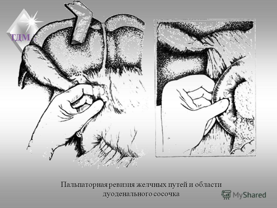 ТДМА Пальпаторная ревизия желчных путей и области дуоденального сосочка